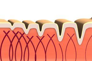 Как увеличить коллаген в коже