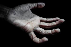 Экзема – симптомы и лечение у взрослых
