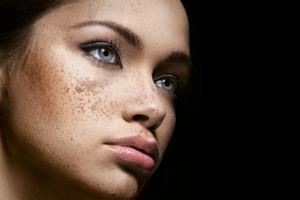 Мелазма на лице: причины и лечение методами натуропатии