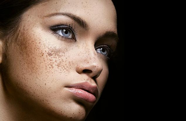 мелазма на лице лечение